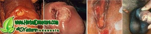 Penyakit Sipilis, Penyakit raja singa, Penyakit Sipilis atau raja singa