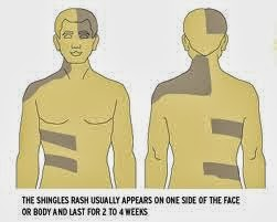 Early signs and symptoms and treatment essential of shingles