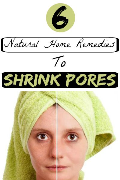 6 Natural Home Remedies To Shrink Pores