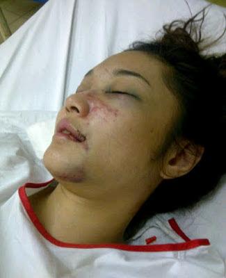 Aida Af9 kemalangan