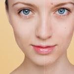 Kesehatan Kulit, cara membuat kulit mulus tanpa noda,cara membuat kulit mulus dan bersih,cara membuat kulit mulus dan putih,tips membuat kulit mulus,menjadi mulus,pemutihan kulit secara alami,