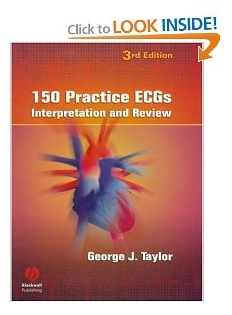 150 Practice ECGs: Interpretation and Review by George J. Taylor pdf
