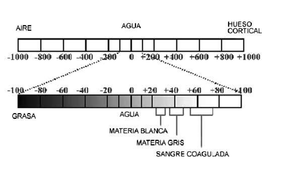 es la asignacin numrica que se realiza a los datos de absorcin de los rayos x que se realizan con el tac van desde para el aire hasta para