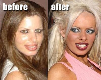 Jessica Simpson Plastic Surgery