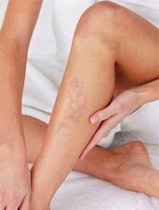 varices en las piernas de las mujeres