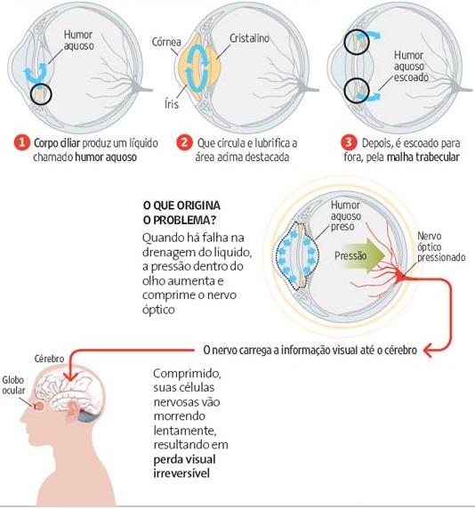 Glaucoma pdf 2012