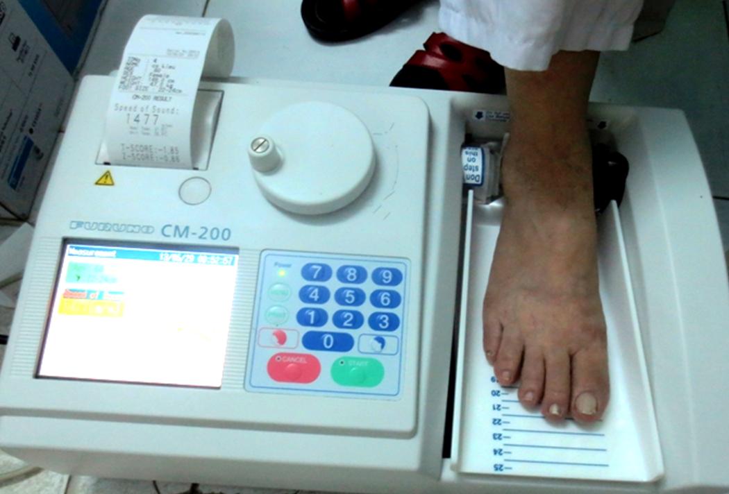 heel bone density machine