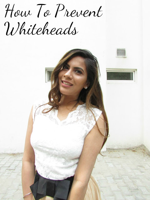 How to prevent White Heads, home-remedies, home remedies for white heads, home remedies for blackheads, home remedies from oimples, how to get aportless skin, delhi blogger, indian fashion blogger, beauty , fashion,beauty and fashion,beauty blog, fashion blog , indian beauty blog,indian fashion blog, beauty and fashion blog, indian beauty and fashion blog, indian bloggers, indian beauty bloggers, indian fashion bloggers,indian bloggers online, top 10 indian bloggers, top indian bloggers,top 10 fashion bloggers, indian bloggers on blogspot,home remedies, how to