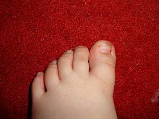 Big Boy's toe after the book damage