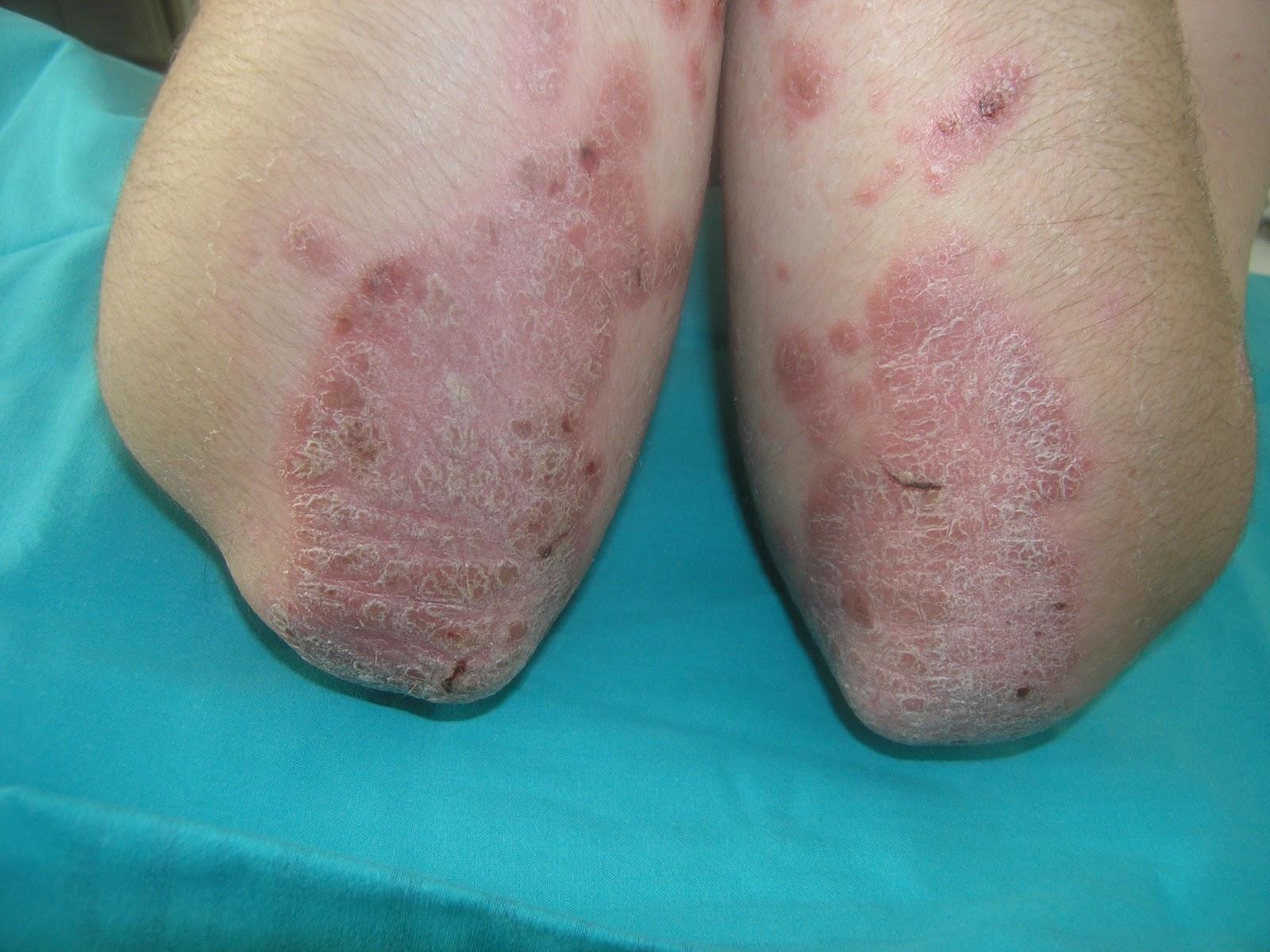 Que es contraindicado de la psoriasis