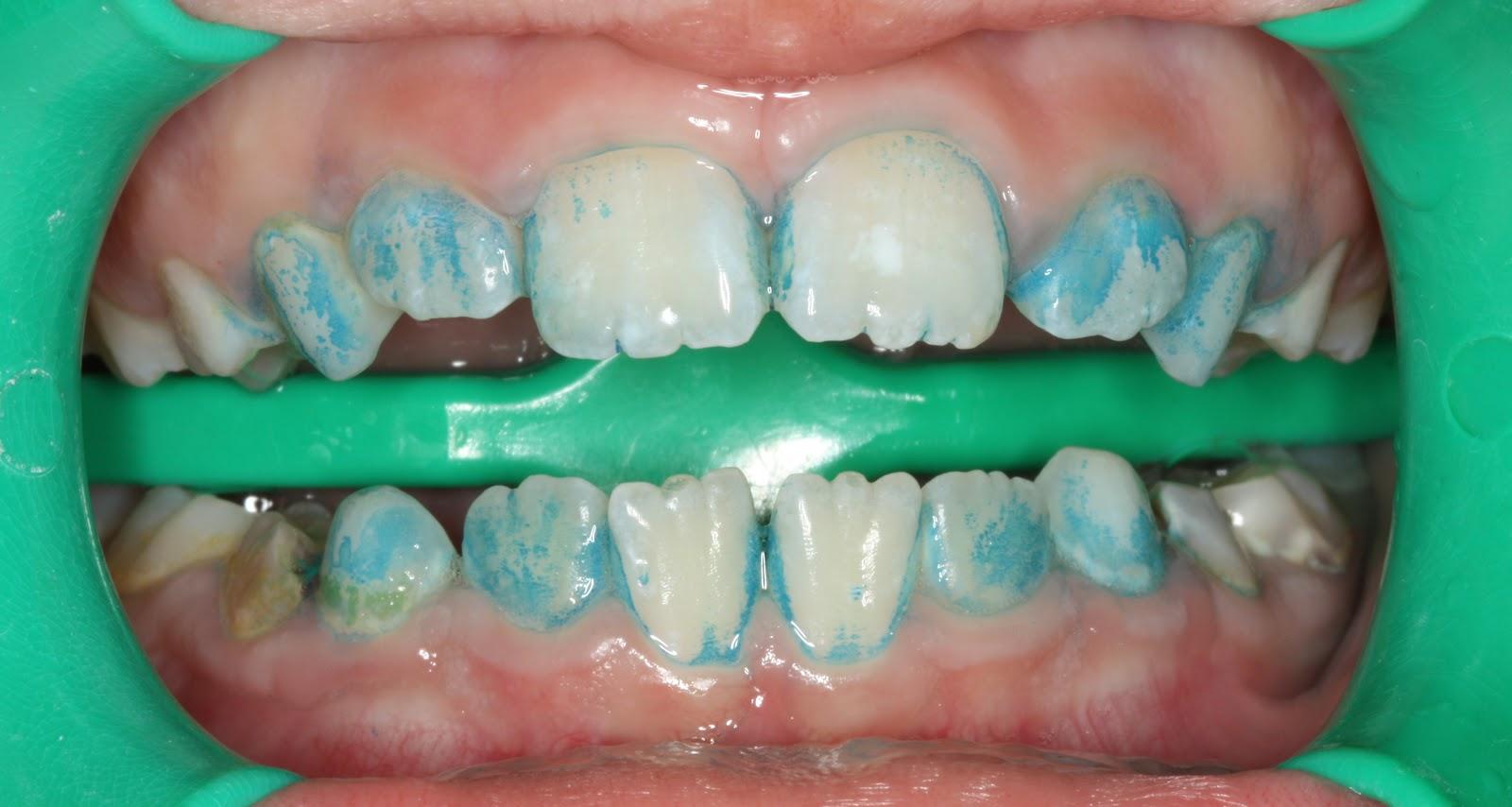 Как выглядит налёт на зубах