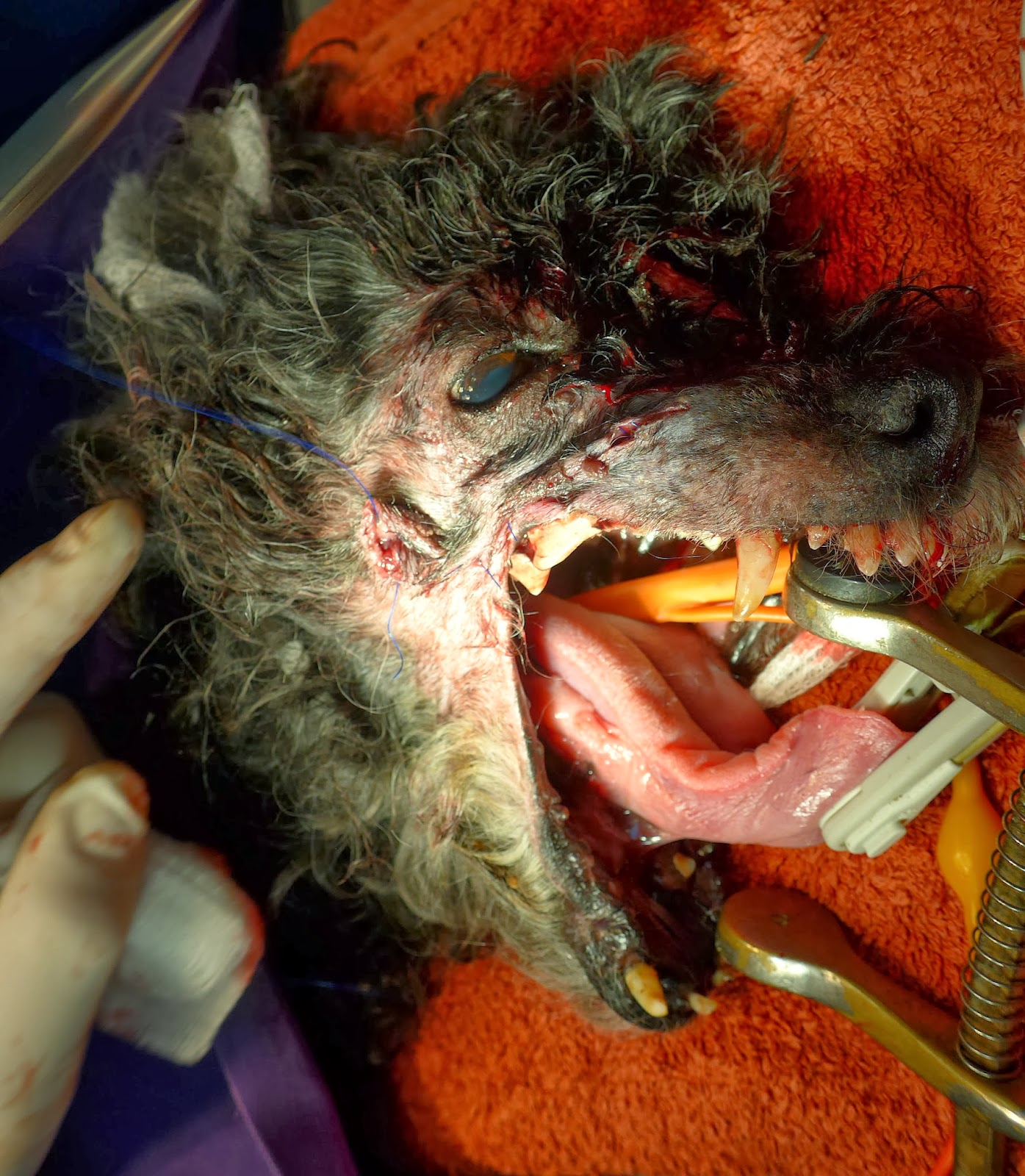 tumor cavidad bucal