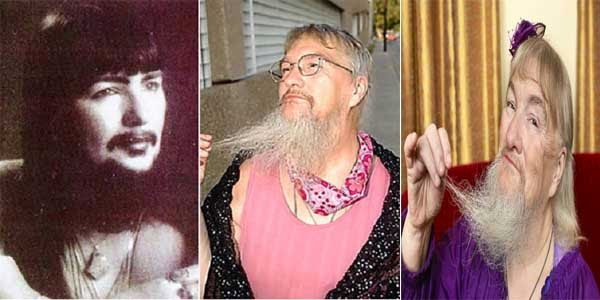 Vivian Wheeler wanita dengan bentuk fisik teraneh di dunia pemilik jenggot terpanjang