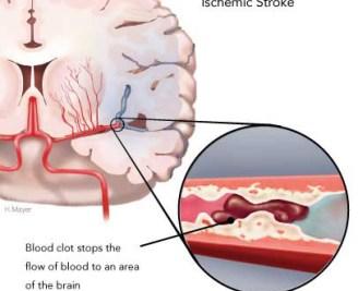 図:脳梗塞