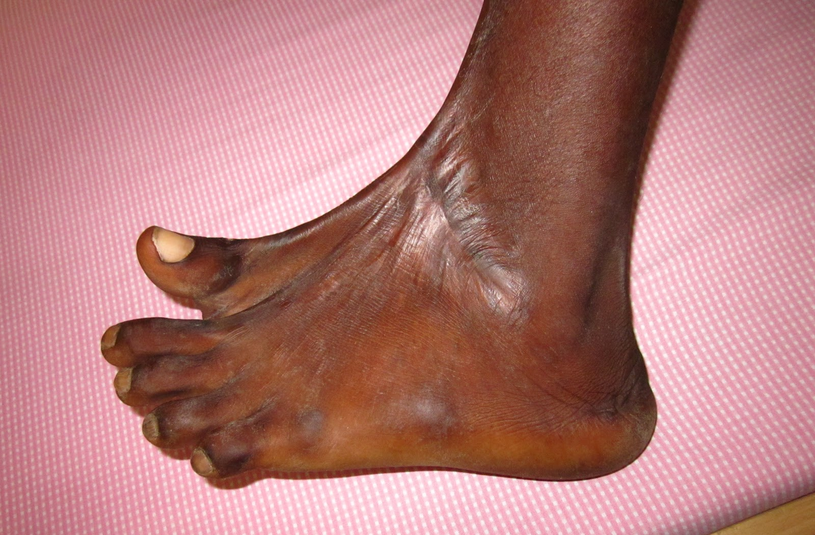 Dorsal Foot Contracture Long Standing Crush Injury Foot Lower