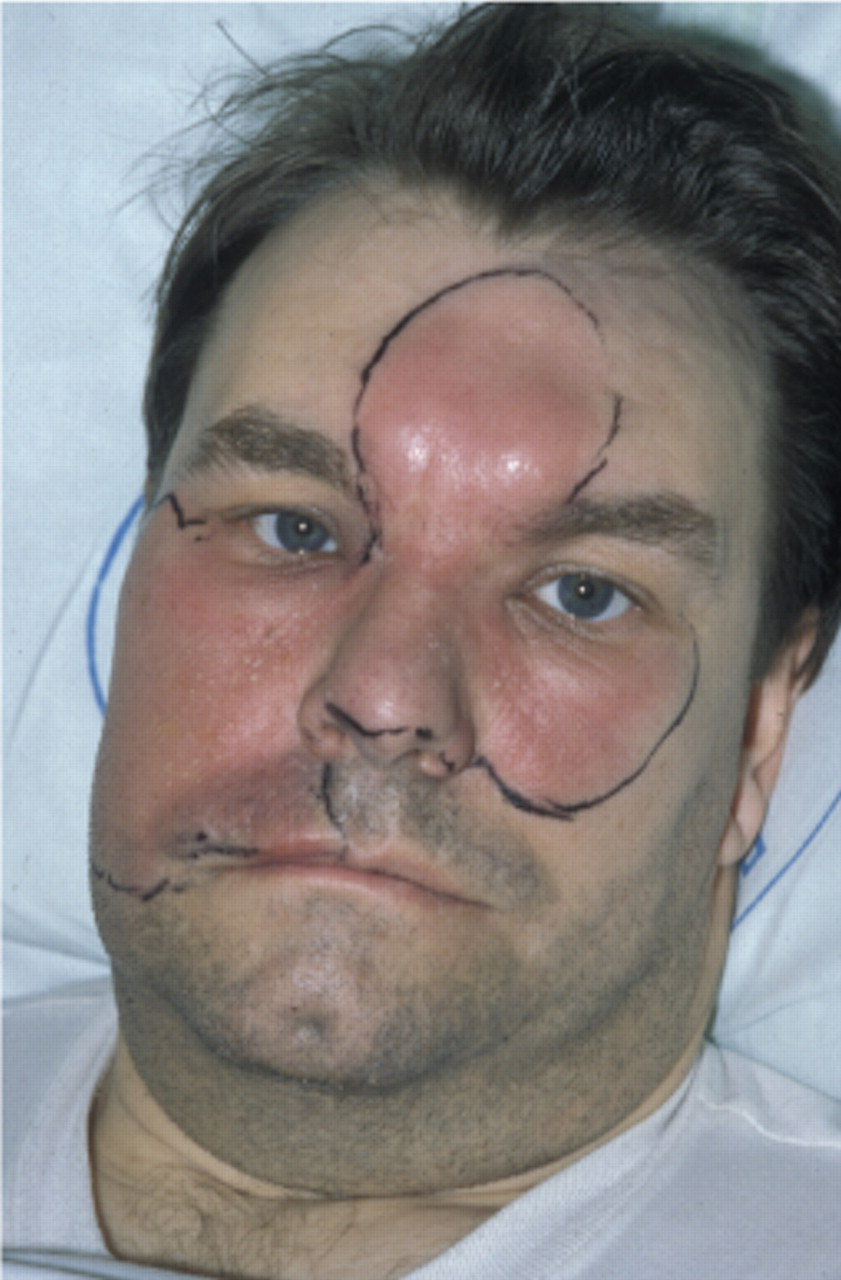 Valuable Treatment of facial cellulitis