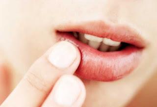Penyebab dan Obat Alami Bibir Kering