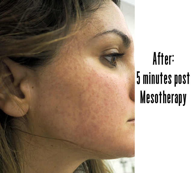 Mesotherapy skin prick nutrition - is it worth it?
