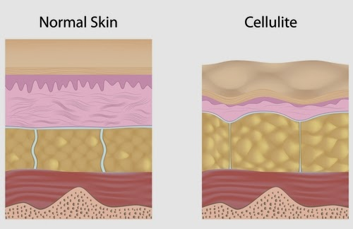 Normal skin vs Cellulite skin