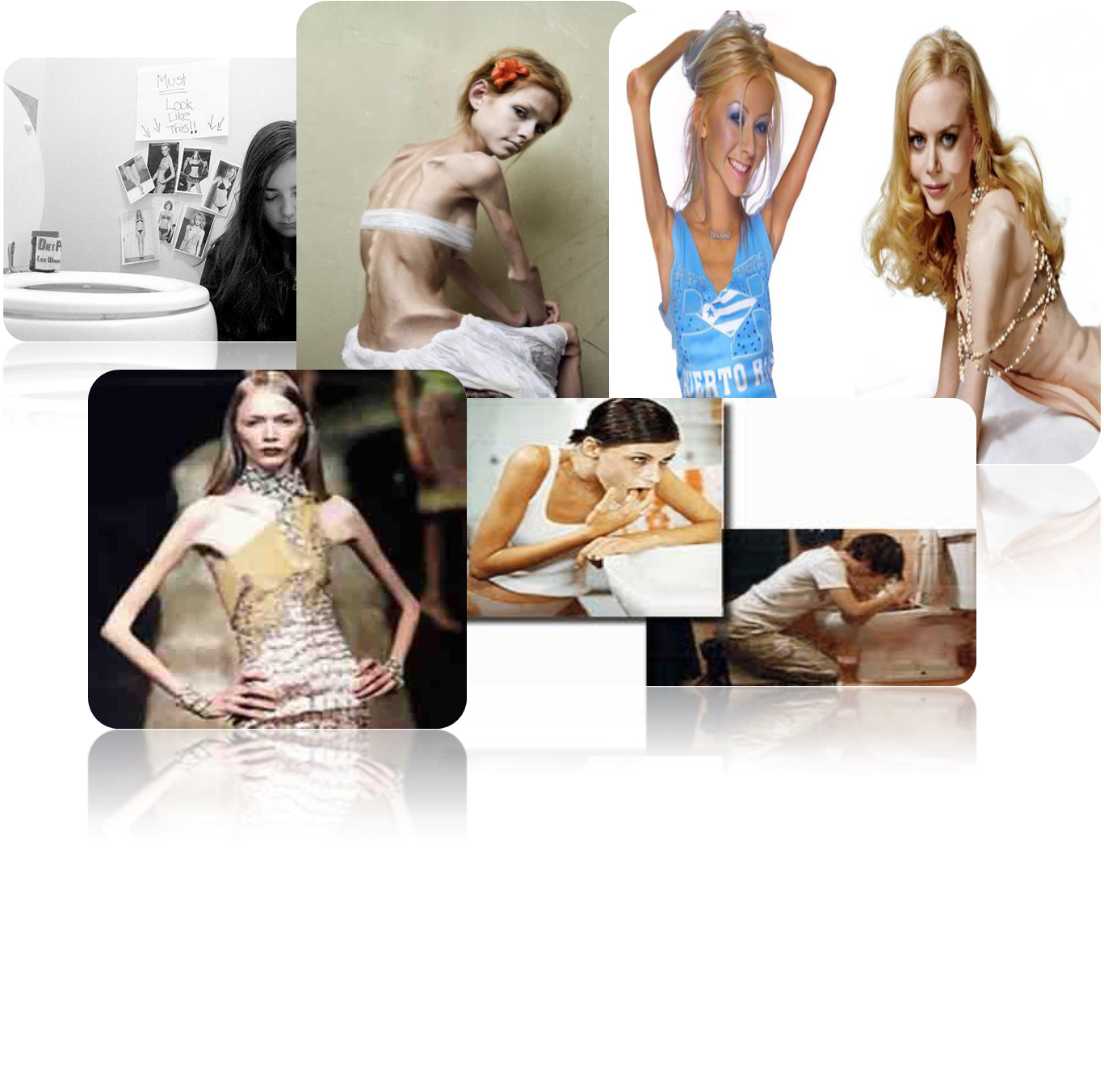 11-4jm: bulimia y anorexia