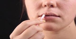 Cara Untuk Mengatasi Sariawan [Stomatitis] Yang Membandel