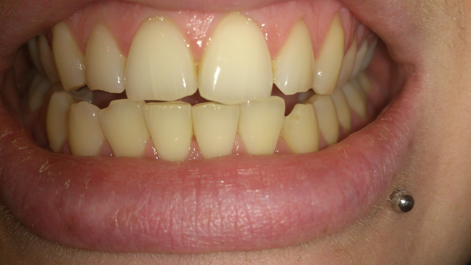 Crest 3d white strips before and after pictures 71 best P90x Results Pics of Others Health Fitness Exercise