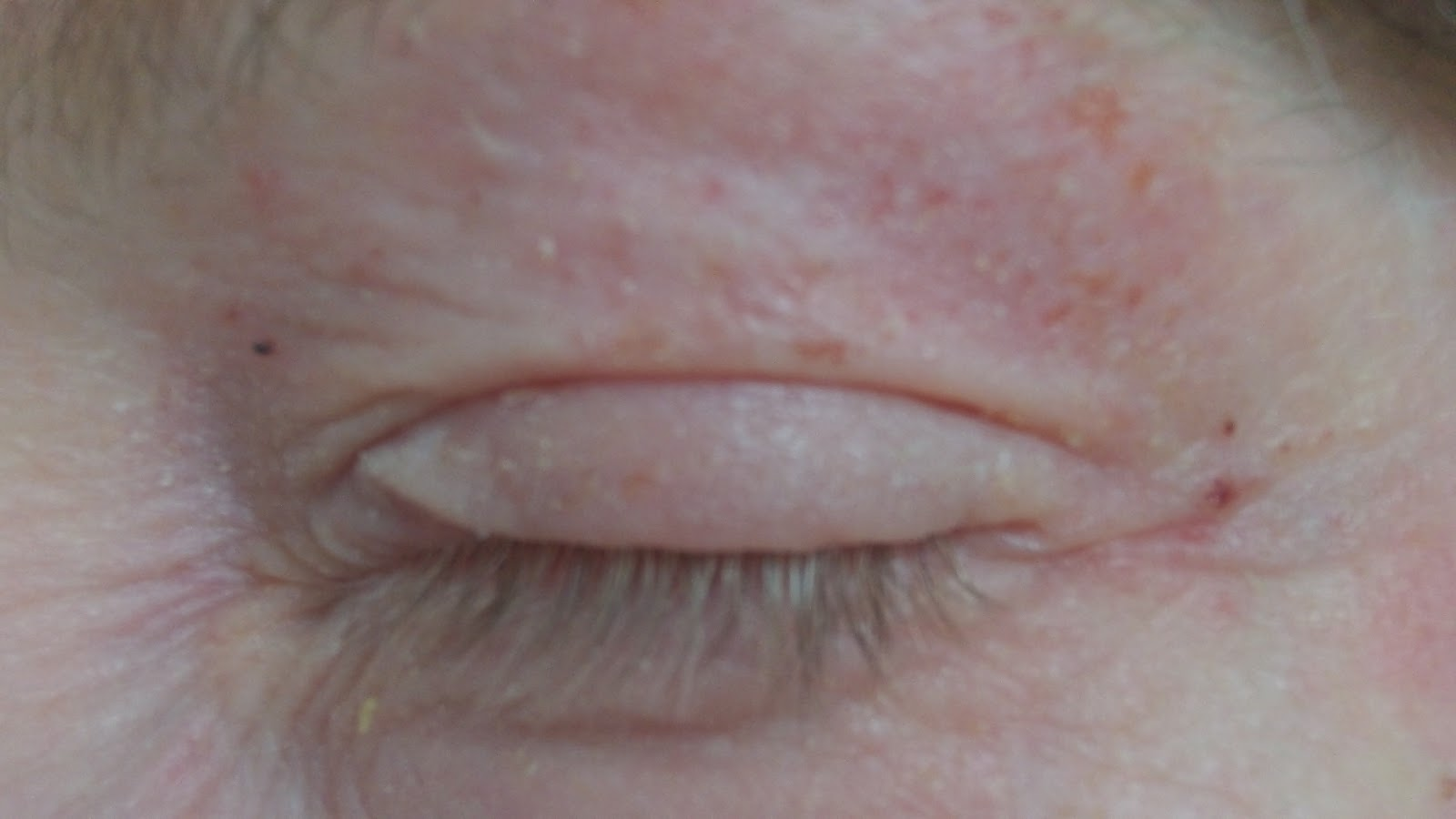 Dry Eyelids – Its Causes and Treatment