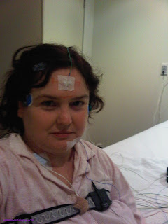 Image: me with sensors for sleep study attached.