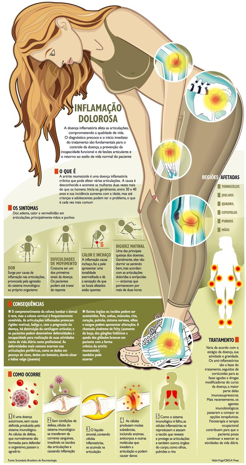 exames artrite reumatoide