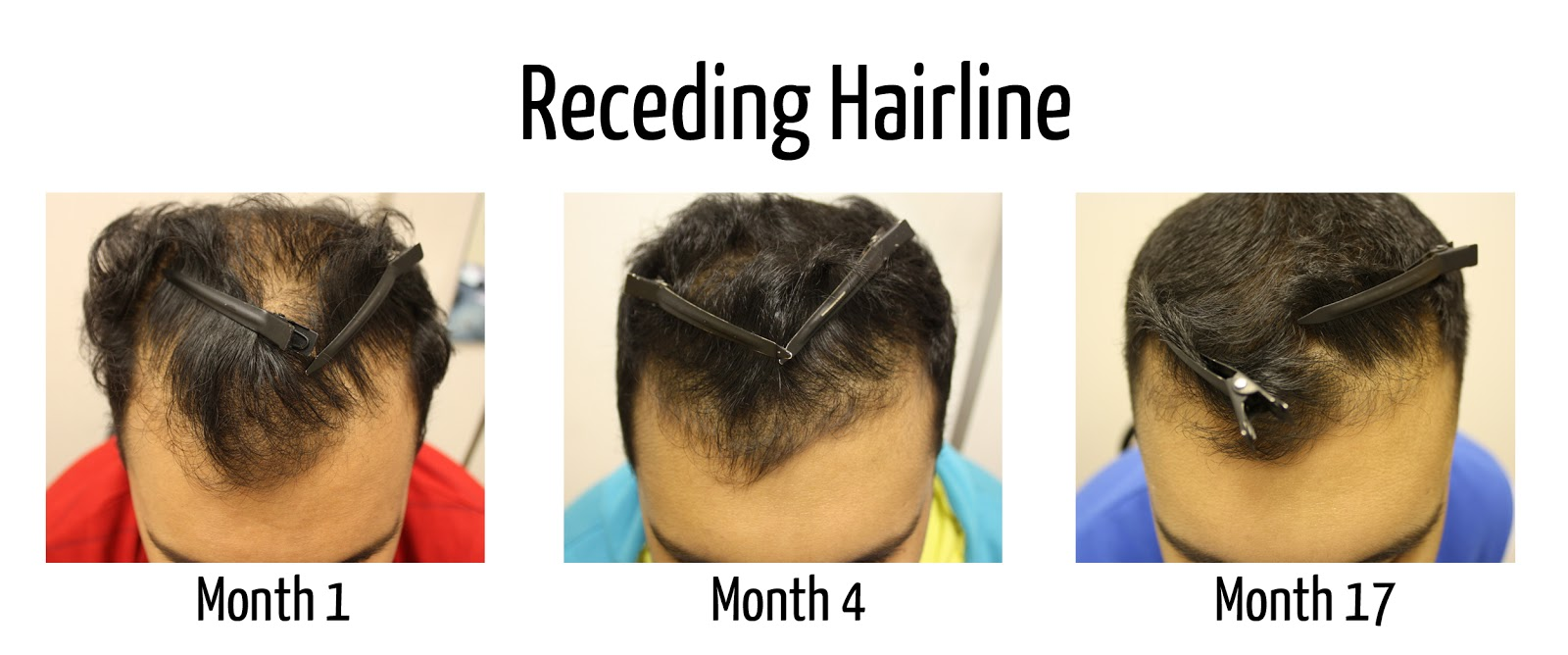 Jamaican Black Castor Oil For Hairline Page 2 Sports