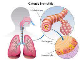 Ineffective airway clearance - NCP for Bronchitis