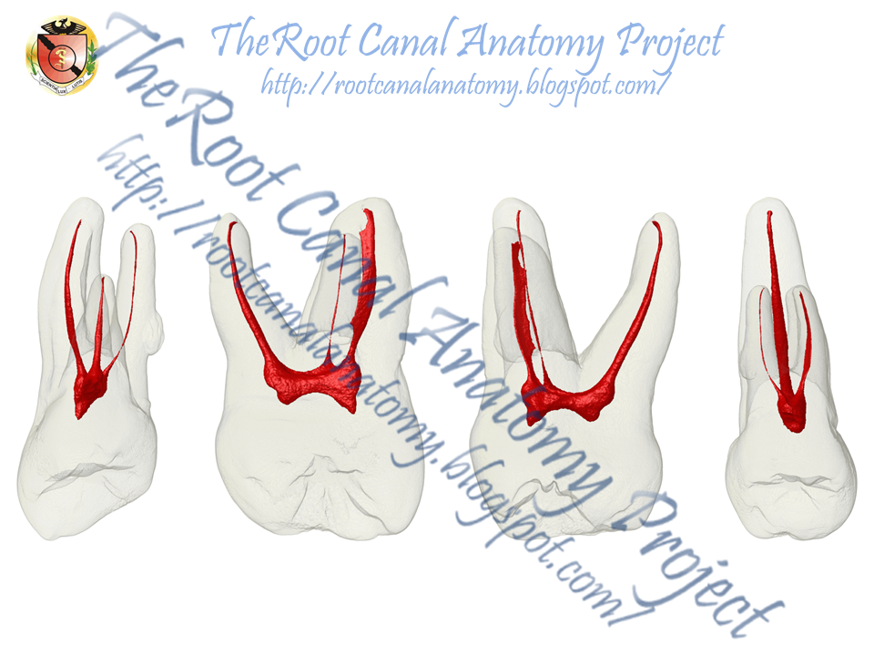 The Root Canal Anatomy Project Maxillary First Molar