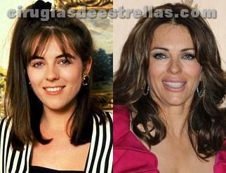 elizabeth hurley antes y despues