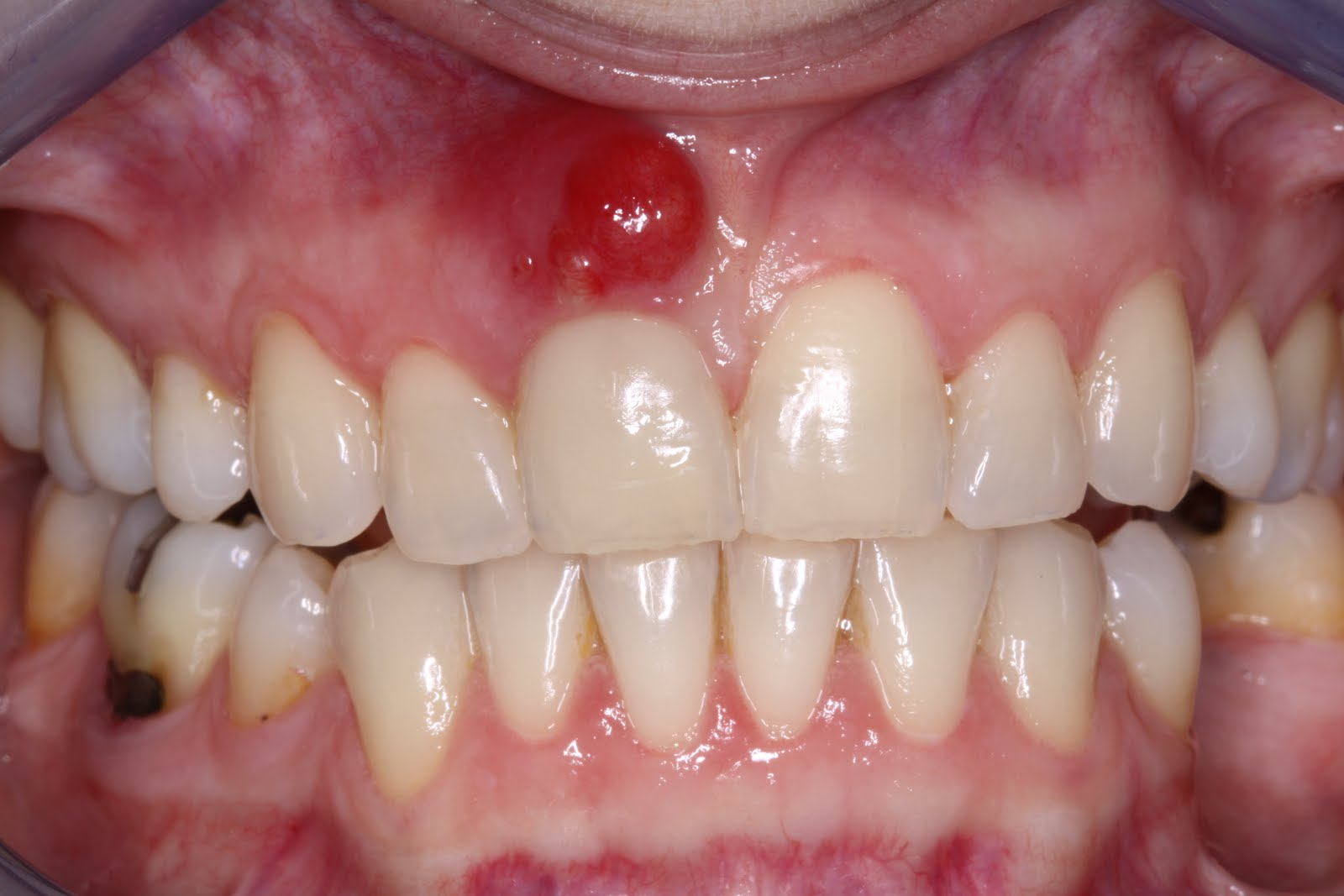 tooth abscess usually occurs as a result of an untreated dental