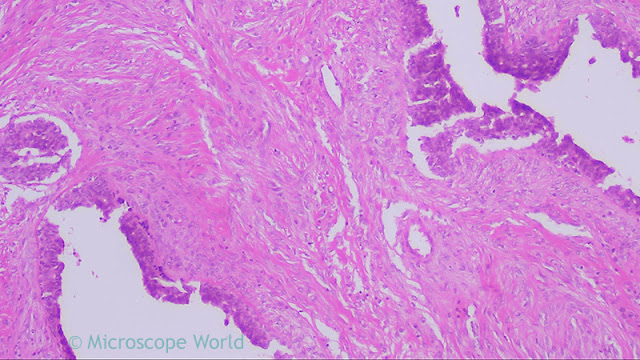 Benign breast tumor under the microscope at 100x.