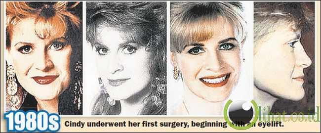 Cindy Jackson - Hasil Operasi Plastik tahun 1980 an