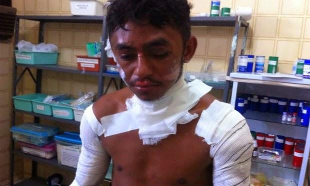 Homem é torturado com ferro de soldar após elogiar mulher em Sertânia
