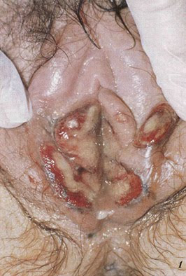 Diagnosis and Management of Genital Ulcers - American ...