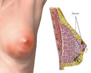 Obat Penyakit Kanker Payudara Terbaik