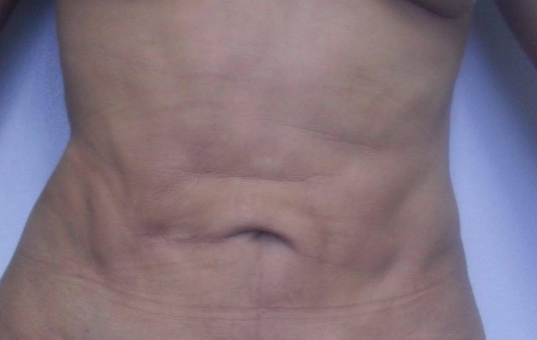 Tight Lacing Blog: Lipoaspiração / Abdominoplastia e o ...