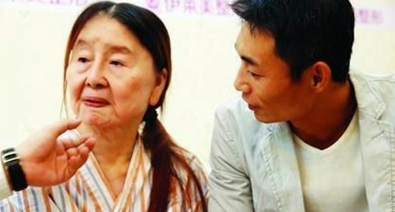 Gadis ini Baru 28 Tahun, Ia Sudah Terlihat Seperti Nenek-Nenek