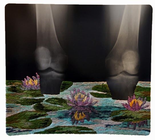 """Wading Knees"" x-ray embroidery art by Matthew Cox"