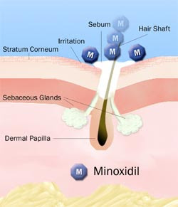 MINOXIDIL IS PROVEN TO SLOW DOWN OR STOP HAIR LOSS AND PROMOTE HAIR
