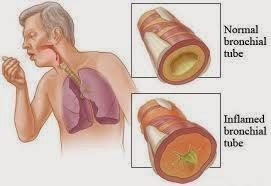 Penyakit Radang Paru-paru (Pneumonia)