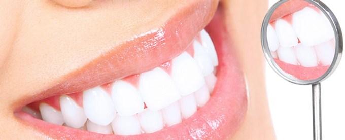 3 tratamente dinti mai albi