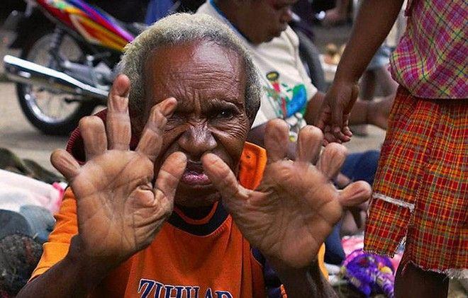 Αυτοί που ακρωτηριάζουν τα δάχτυλα τους ως μορφή πένθους