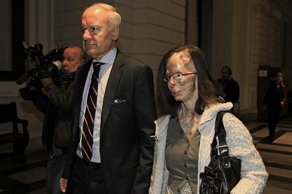 diaforetiko.gr : tromaktiko1169  Της έριξε βιτριόλι επειδή τον χώρισε! – ΠΡΟΣΟΧΗ: Σκληρές φωτογραφίες