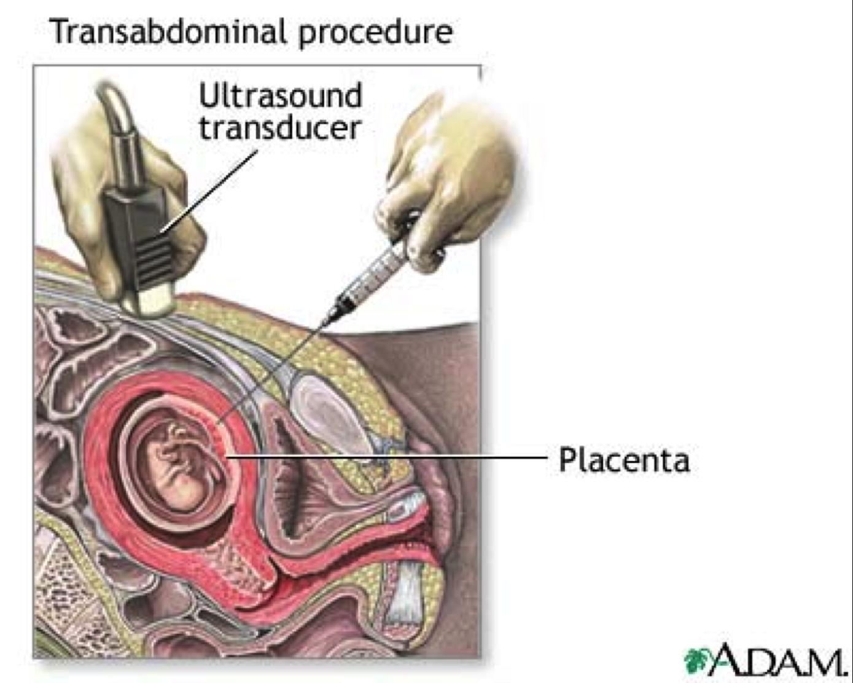 Fetal pig testes