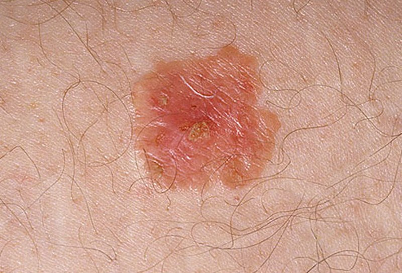 basal cell skin cancer pictures