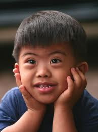 Karakteristik Anak Tunagrahita